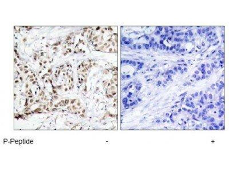 Immunohistochemistry (IHC) image for anti-Mitogen-Activated Protein Kinase 8 (MAPK8) (pThr183) antibody (ABIN4327961)