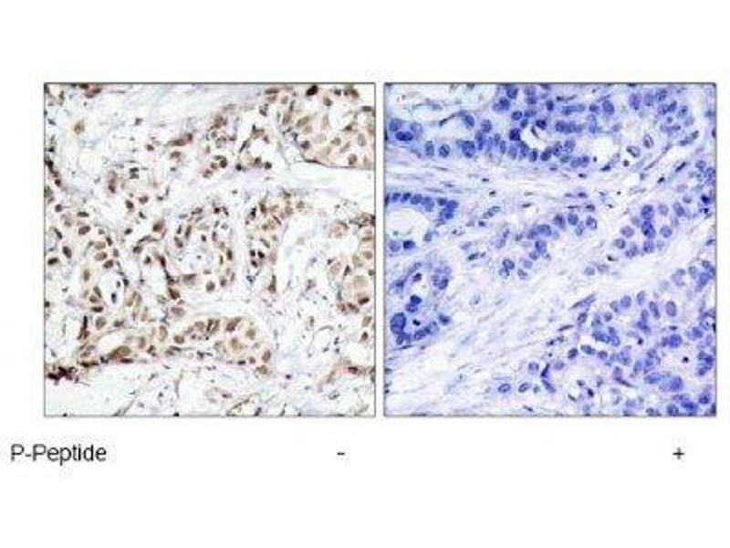 Immunohistochemistry (IHC) image for anti-Mitogen-Activated Protein Kinase 8 (MAPK8) (pThr183) antibody (ABIN4327961)