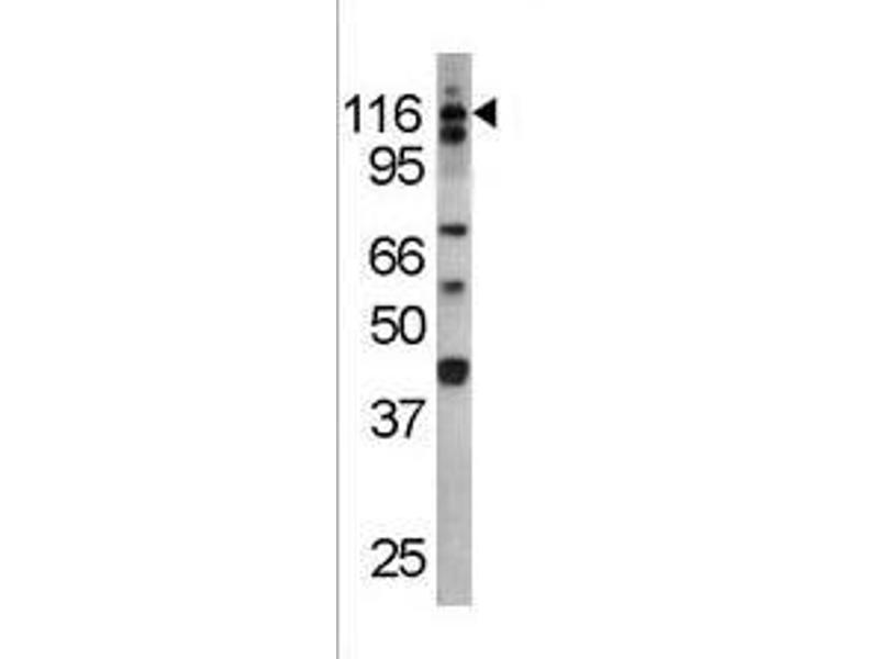 Western Blotting (WB) image for anti-IL3RA antibody (Interleukin 3 Receptor, alpha (Low Affinity)) (pTyr766) (ABIN389580)