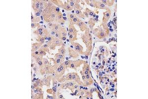 Immunohistochemistry (Paraffin-embedded Sections) (IHC (p)) image for anti-Villin 1 (VIL1) (AA 180-207), (N-Term) antibody (ABIN390742)