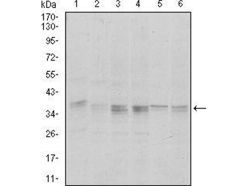 Western Blotting (WB) image for anti-Protein Phosphatase 1, Catalytic Subunit, alpha Isoform (PPP1CA) antibody (ABIN969360)