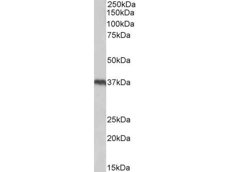 Western Blotting (WB) image for anti-Uncoupling Protein 2 (Mitochondrial, Proton Carrier) (UCP2) (Internal Region) antibody (ABIN5539644)