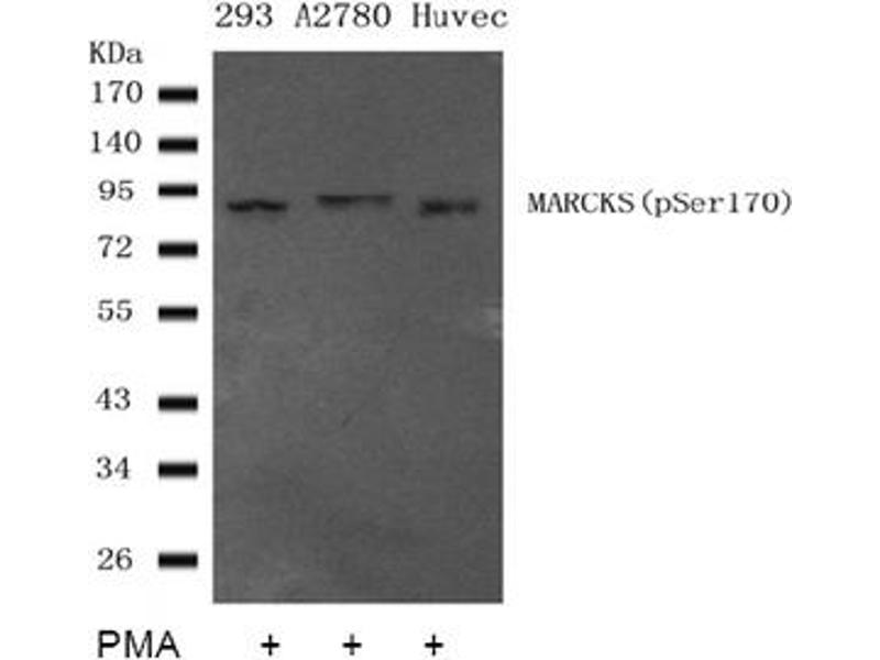 image for anti-MARCKS antibody (Myristoylated Alanine-Rich Protein Kinase C Substrate) (pSer170) (ABIN401558)