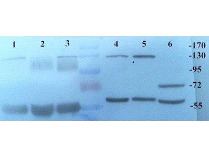 Western Blotting (WB) image for anti-KLKB1 antibody (Kallikrein B, Plasma (Fletcher Factor) 1) (ABIN2506647)
