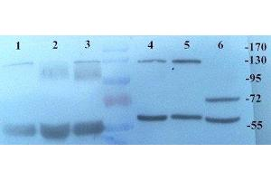 Western Blotting (WB) image for anti-Kallikrein B, Plasma (Fletcher Factor) 1 (KLKB1) antibody (ABIN2506647)