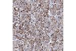 Immunohistochemistry (Paraffin-embedded Sections) (IHC (p)) image for anti-MERTK antibody (C-Mer Proto-Oncogene Tyrosine Kinase) (ABIN4333889)