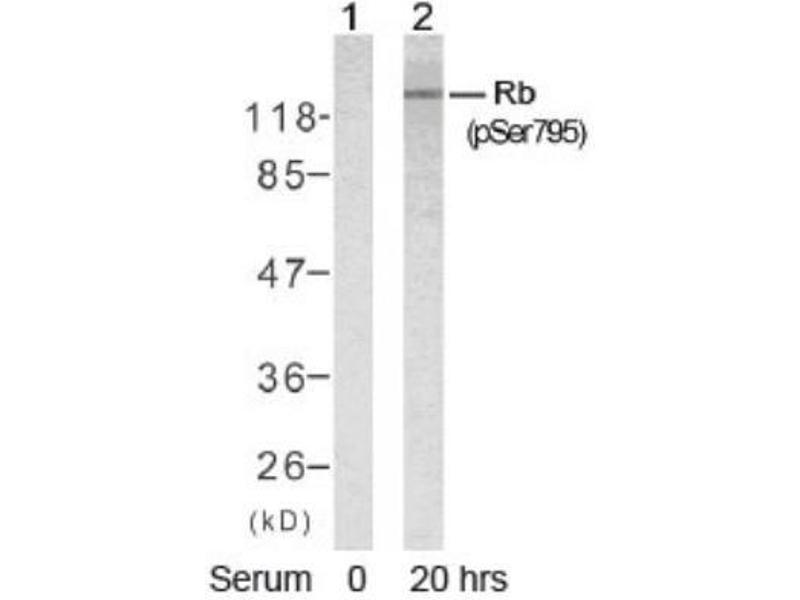 Western Blotting (WB) image for anti-Retinoblastoma 1 抗体 (RB1) (pSer795) (ABIN4349473)