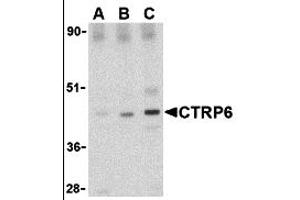 Image no. 1 for anti-Complement C1q Tumor Necrosis Factor-Related Protein 6 (C1QTNF6) (Middle Region) antibody (ABIN1030915)