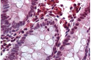 Immunohistochemistry (Paraffin-embedded Sections) (IHC (p)) image for anti-GPBAR1 antibody (G Protein-Coupled Bile Acid Receptor 1) (AA 300-350) (ABIN290221)