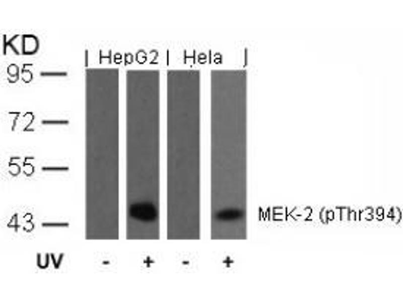 Image no. 2 for anti-MAP2K2 antibody (Mitogen-Activated Protein Kinase Kinase 2) (pThr394) (ABIN196622)