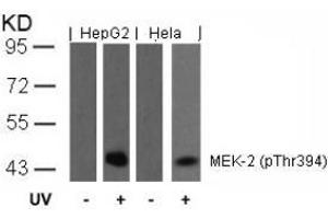 anti-Mitogen-Activated Protein Kinase Kinase 2 (MAP2K2) (pThr394) antibody (2)