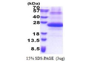 Image no. 1 for Sjogren Syndrome/scleroderma Autoantigen 1 (SSSCA1) (AA 1-199) protein (His tag) (ABIN6387322)