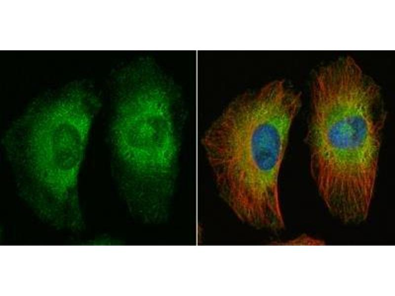 Immunofluorescence (IF) image for anti-Adenomatous Polyposis Coli (APC) antibody (ABIN4280975)