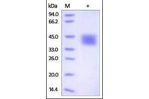 Image no. 1 for CD84 (CD84) (AA 22-225) protein (His tag) (ABIN2180849)