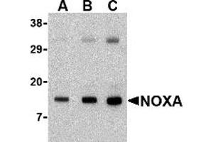 Western Blotting (WB) image for anti-NOXA Antikörper (Phorbol-12-Myristate-13-Acetate-Induced Protein 1) (N-Term) (ABIN1031489)