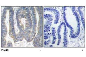 image for anti-EIF2AK2 antibody (Eukaryotic Translation Initiation Factor 2-alpha Kinase 2) (Thr451) (ABIN197555)