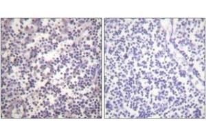 Image no. 2 for anti-Small Nuclear Ribonucleoprotein Polypeptide E (SNRPE) (AA 576-625), (pSer602) antibody (ABIN1531496)