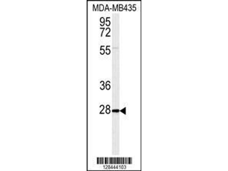 Western Blotting (WB) image for anti-IL12B antibody (Interleukin 12b) (ABIN2487865)