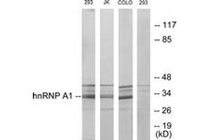 Image no. 3 for anti-Heterogeneous Nuclear Ribonucleoprotein A1 (HNRNPA1) (AA 51-100) antibody (ABIN1533600)